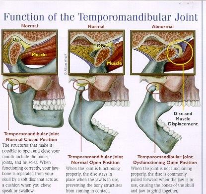 TMJ Diagram